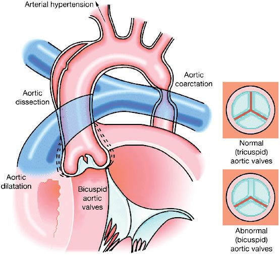 1000+ ideas about Bicuspid Aortic Valve on Pinterest.