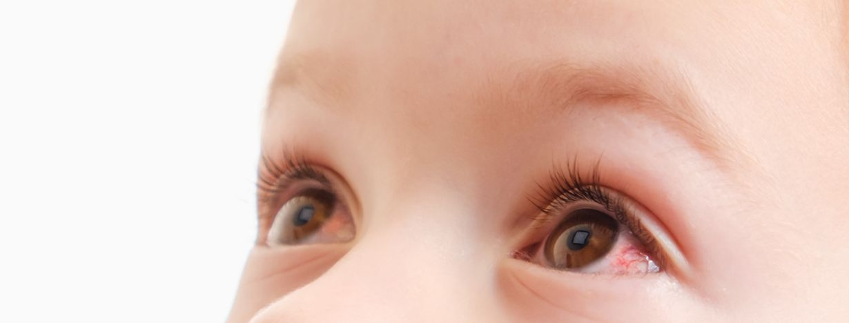 Why Does Your Baby Have Red Eyes? A Parents\' Guide.