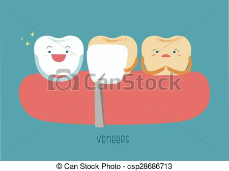 Vector Clip Art of Veneers teeth of dental csp28686713.