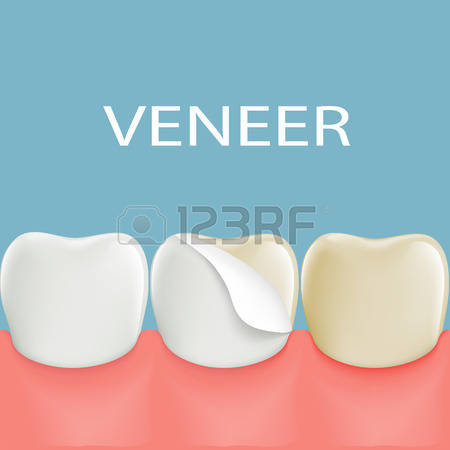 113 Veneers Stock Vector Illustration And Royalty Free Veneers Clipart.