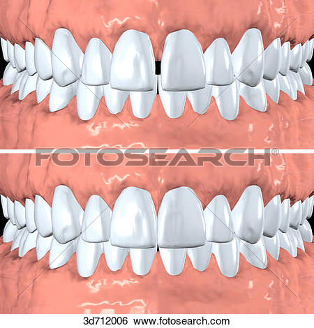 Stock Illustration of Diastema (space) between teeth closed by.