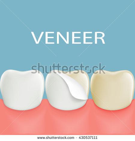 Veneer Tooth Clip Art.