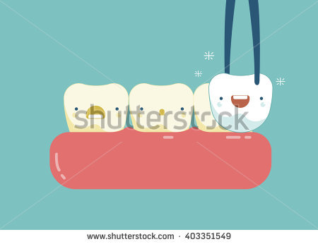 Dental Veneers Stock Photos, Royalty.