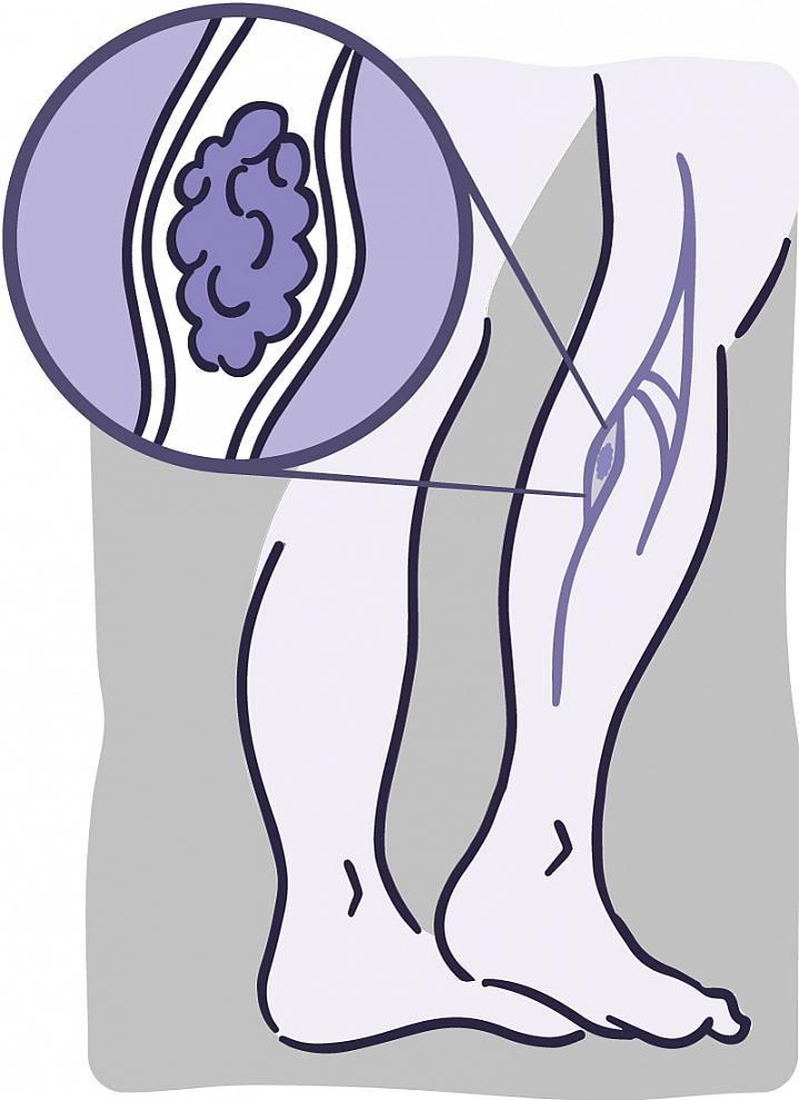 How to Spot and Prevent Deep Vein Thrombosis.