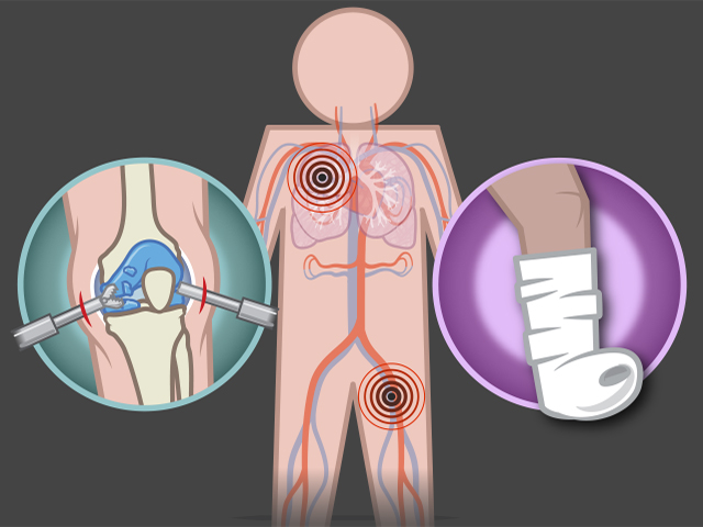 Preventing Venous Thromboembolism after Arthroscopy and.