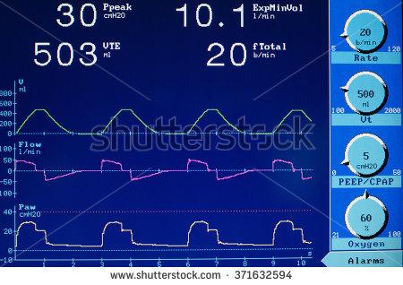 Ventilation Stockfoto's, rechtenvrije afbeeldingen en vectoren.
