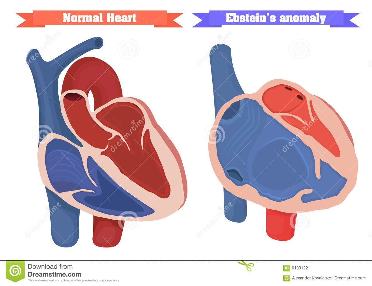 Ebstein Anomaly Versus Normal Heart Structure Vector Illustration.