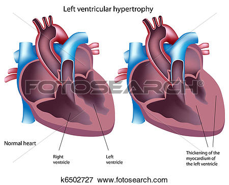 Ventricle Clipart EPS Images. 316 ventricle clip art vector.