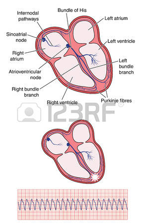 171 Ventricular Stock Illustrations, Cliparts And Royalty Free.