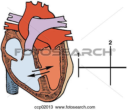Drawing of Auscultation, ventricular septal defect ccp02013.