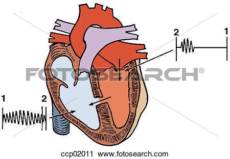 Clipart of Auscultation, ventricular septal defect ccp02011.