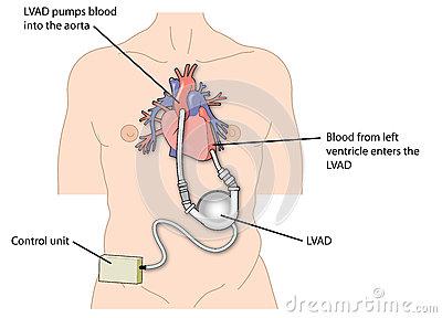 Left Ventricular Assist Device On Clip Art.