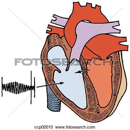 Stock Illustrations of Auscultation, ventricular septal defect.