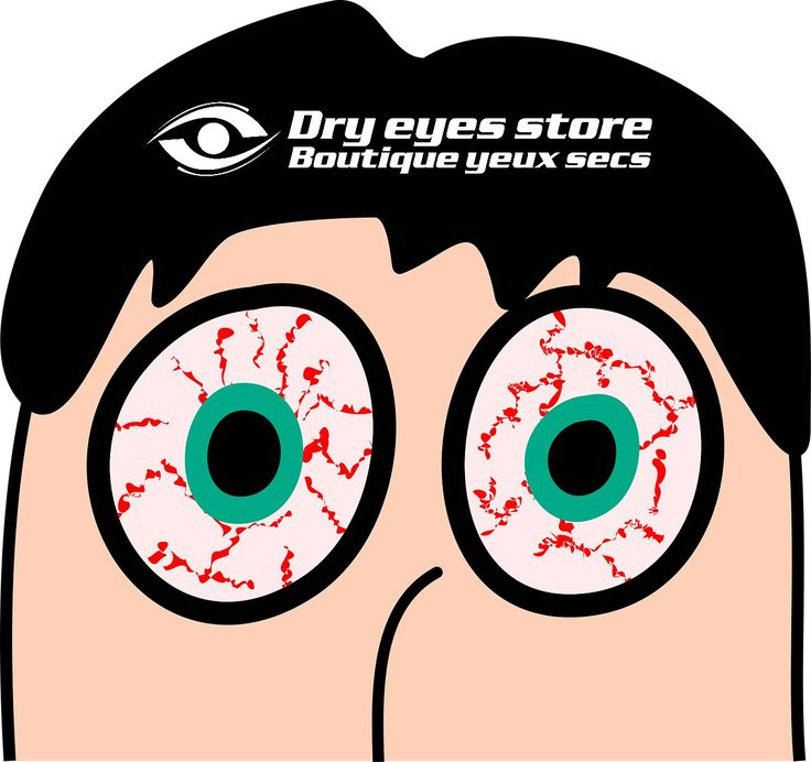 1000+ ideas about Dry Eye Symptoms on Pinterest.