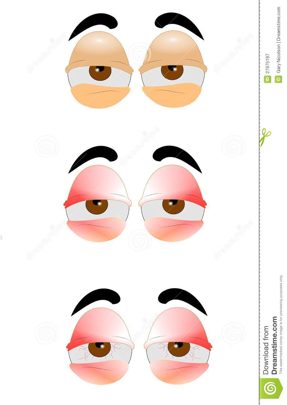 Tired Red Eyes Clipart#2143663.