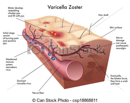Vector Clip Art of varicella zoster virus.