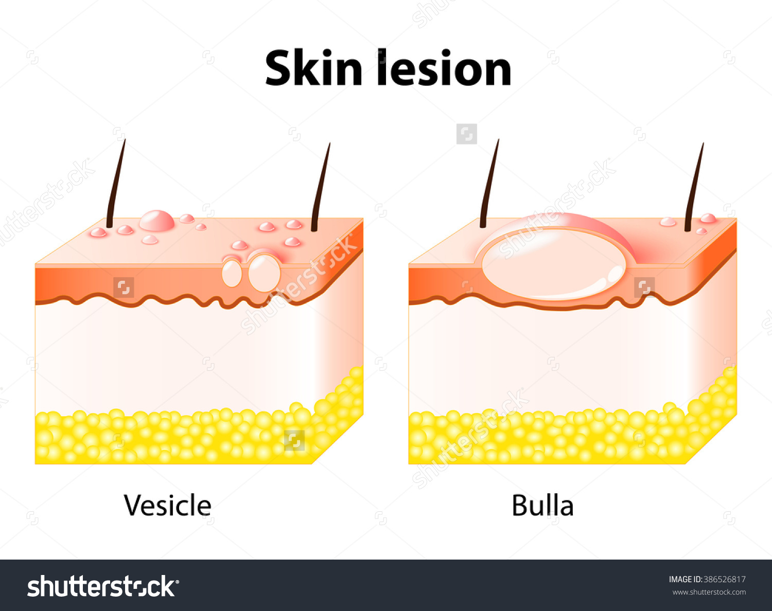 Vesicle Bulla Skin Lesion Stock Illustration 386526817.