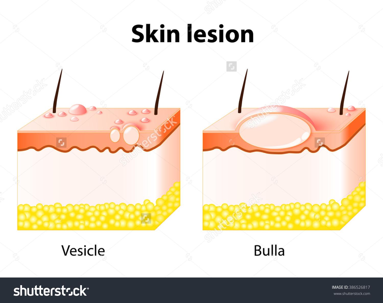 Vesicle Bulla Skin Lesion Stock Illustration 386526817.