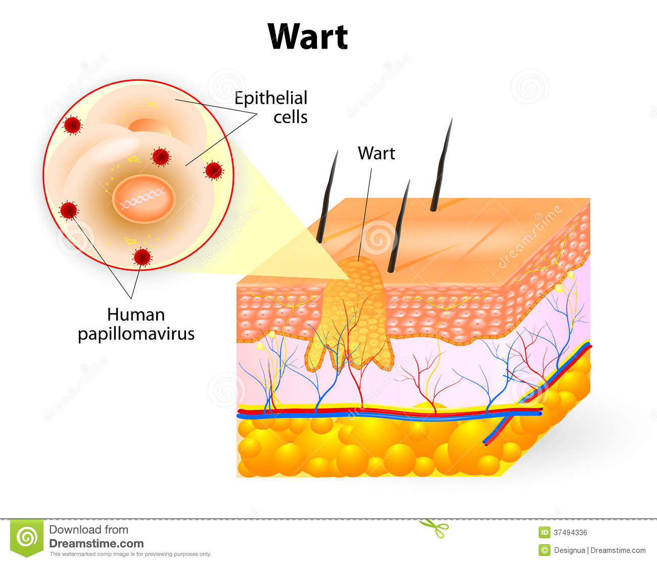 Genital warts clipart.