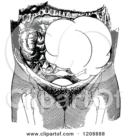 Clipart of a Vintage Black and White Ovarian Tumor on the Left.