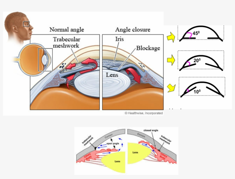 Narrow Angles Occur In Smaller Eyes Where There Is.
