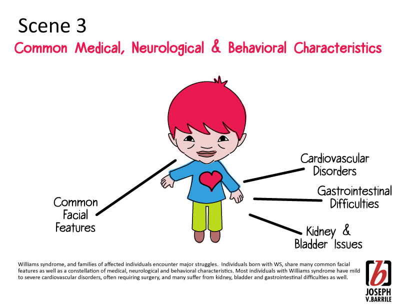 Williams Syndrome Cliparts Free Download Clip Art.