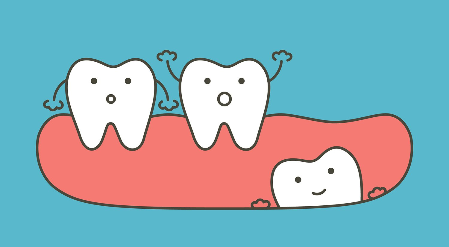 Wisdom Teeth Removal: Know Before You Go.