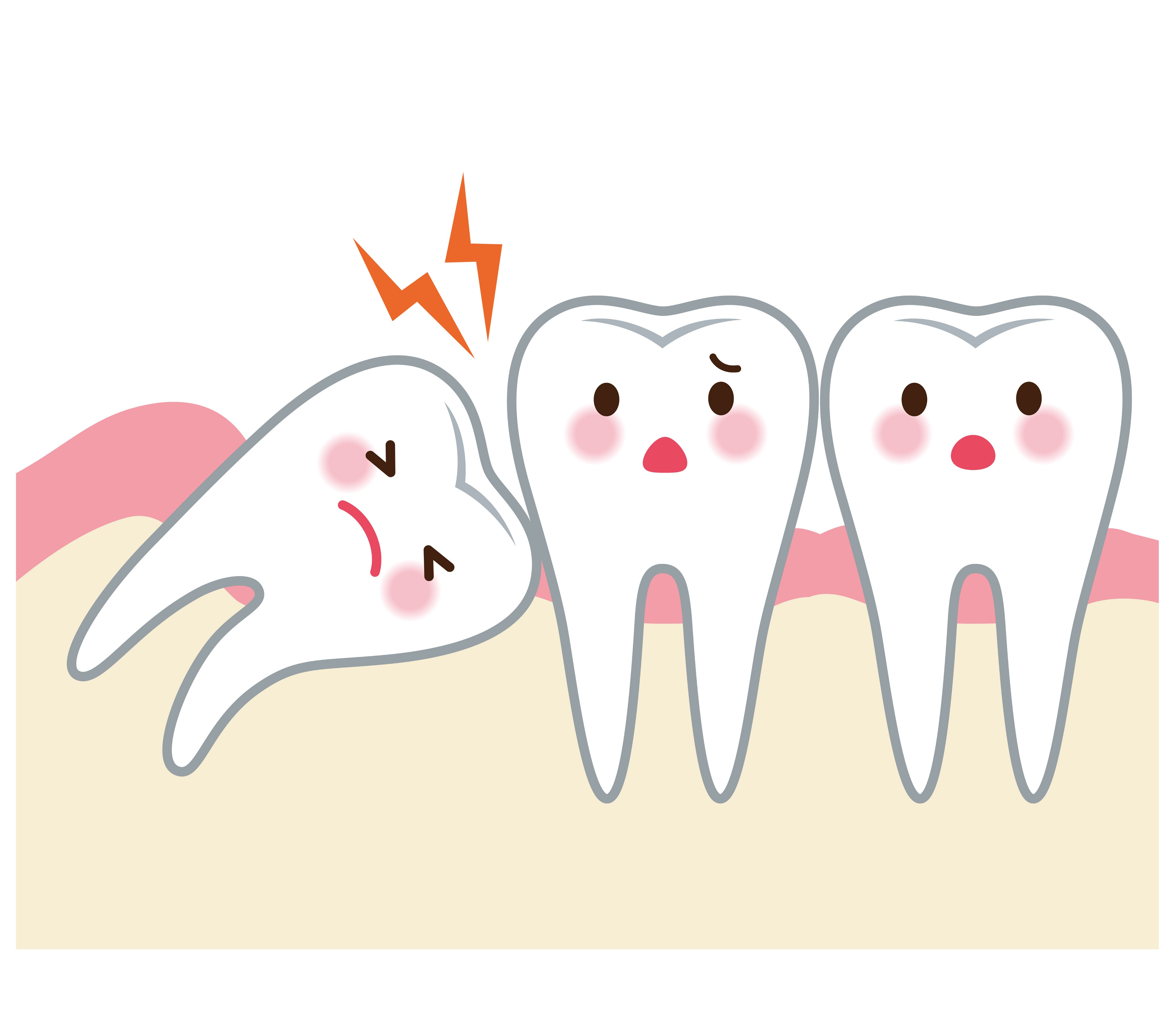 All you need to know about wisdom tooth extraction.