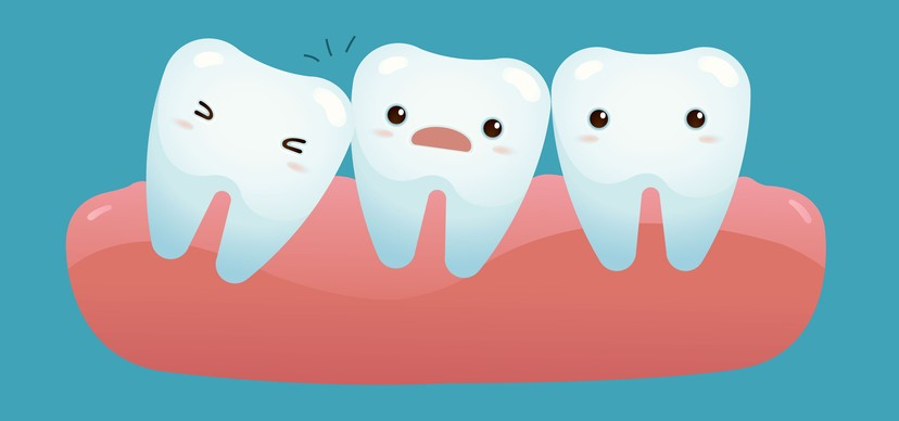 Does Everyone Have to Get Their Wisdom Teeth Removed.