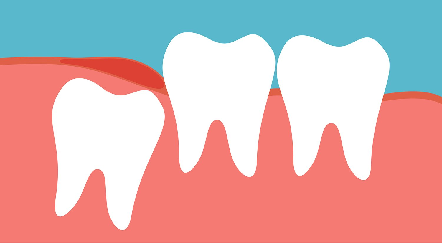 Wisdom Teeth Coming In? What You Need to Know.