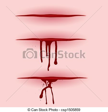 Wound Illustrations and Clip Art. 4,766 Wound royalty free.