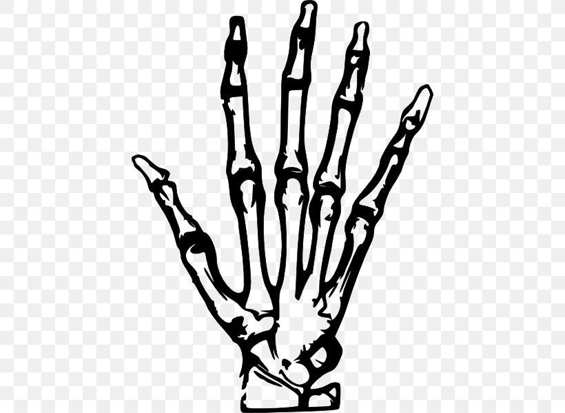 Hand X.