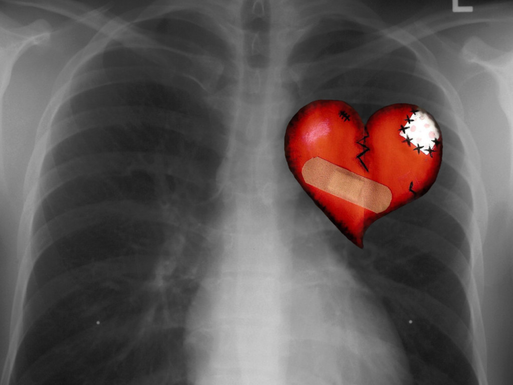 Chest X Ray Backgrounds For PowerPoint.