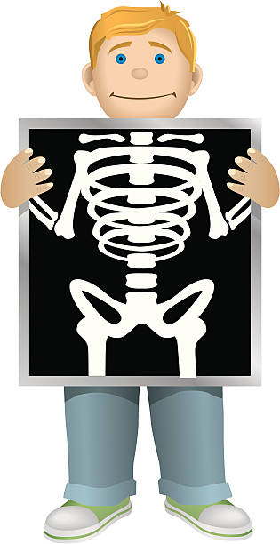Best Cartoon Of X Ray For Kids Illustrations, Royalty.