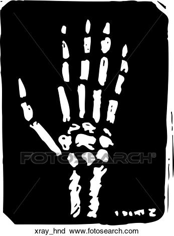Clipart xray 5 » Clipart Station.