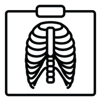 X ray clipart black and white 4 » Clipart Station.
