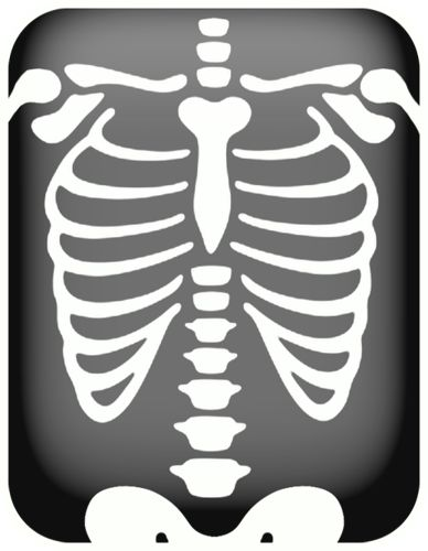 X ray clipart black and white 6 » Clipart Station.