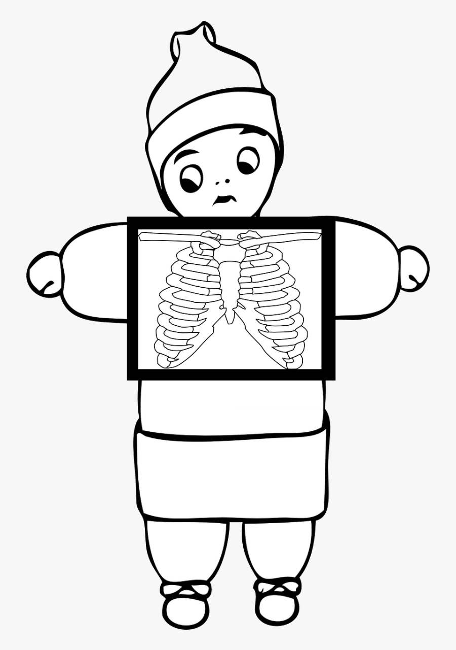 Clip Art Black And White X Ray , Free Transparent Clipart.