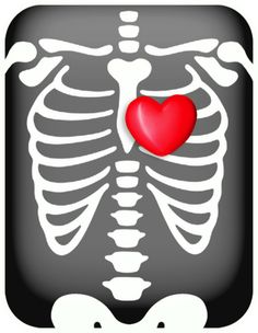 Free Chest Xray Cliparts, Download Free Clip Art, Free Clip.