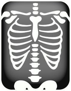 Chest X Ray Clipart.