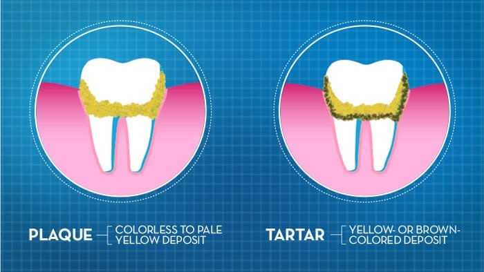What is dental plaque and tartar?.
