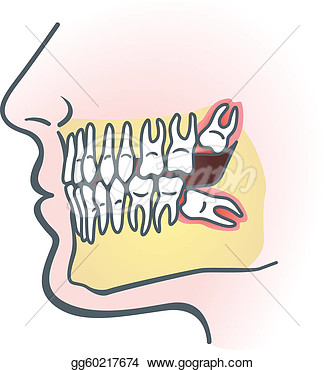 Wisdom Teeth Clipart.