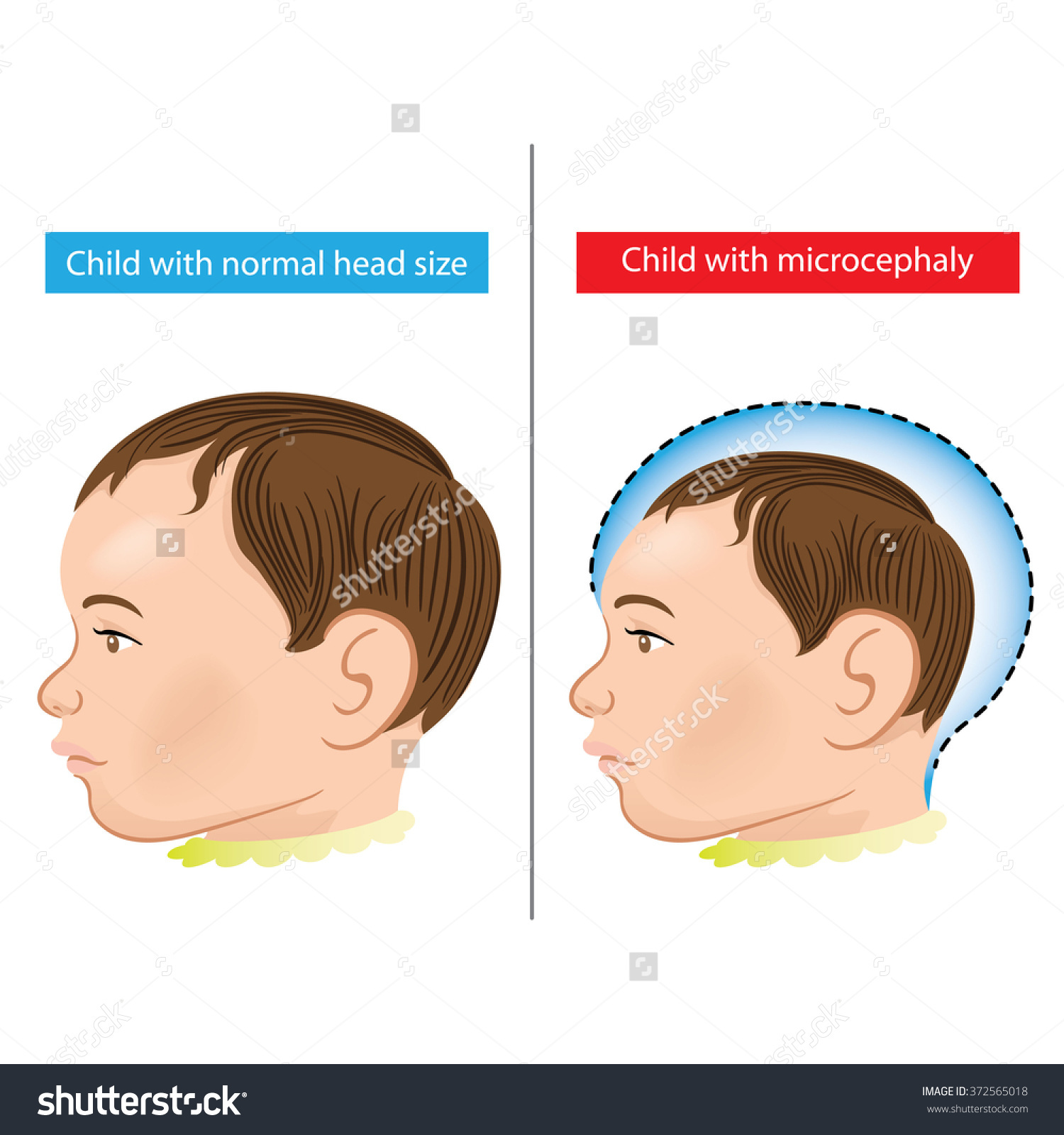 Illustration Newborn Baby Microcephaly Disease Caused Stock Vector.